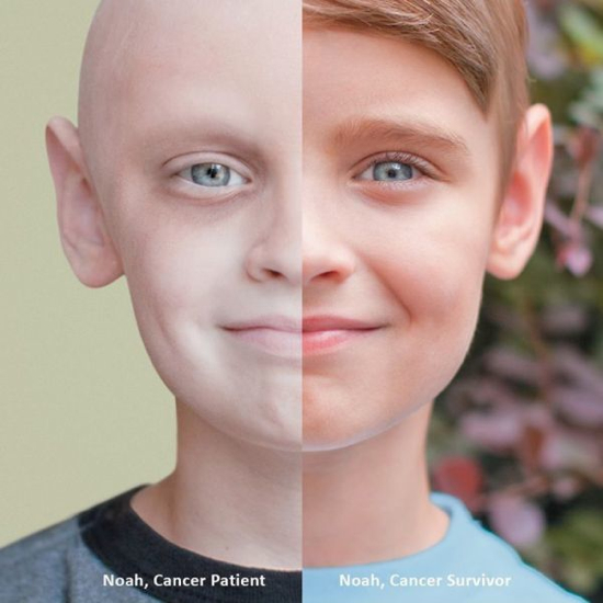 Noah Cancer Beforeandafter