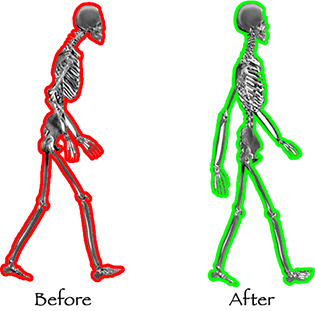  Before After Posture