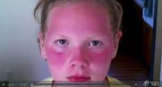 Sunburned-Girl