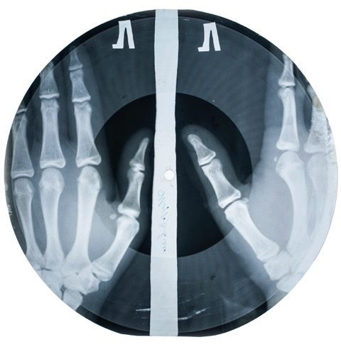 X-Ray Record Bones Coates Pic