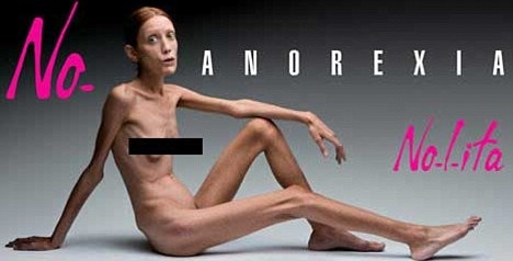 _Isabelle-Caro_anorexia.jpg